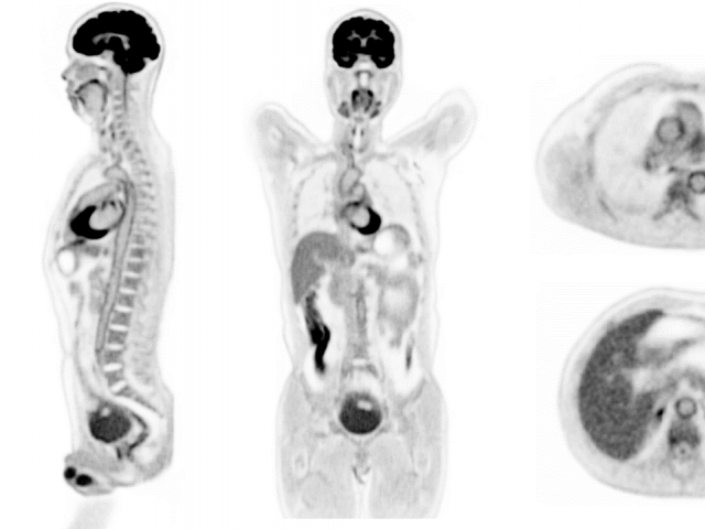 Coronal, sagittal, and axial slices from the first human scan on the uEXPLORER PET/CT scanner.